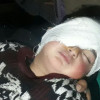 Pellet removed from Kashmir's youngest victim's eye