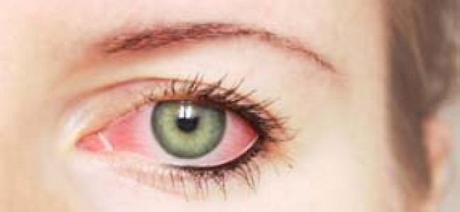 AN OVERVIEW OF GLAUCOMA