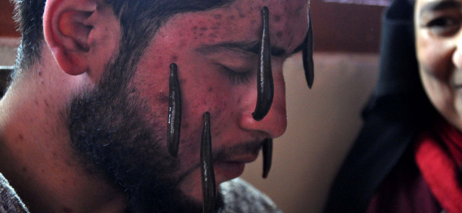 A tradition that still exists: On Nauraz, a youth undergoes traditional leech therapy...