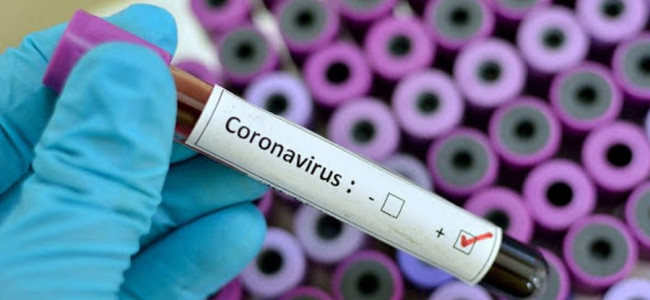22-year-old tests positive for COVID-19 in Baramulla